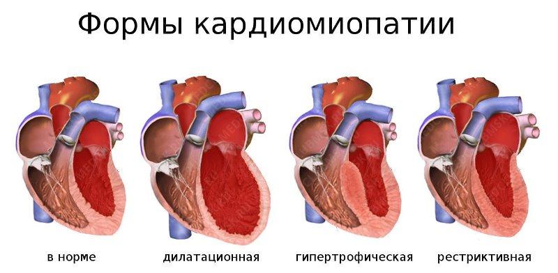 kardiomiopatiya.jpg