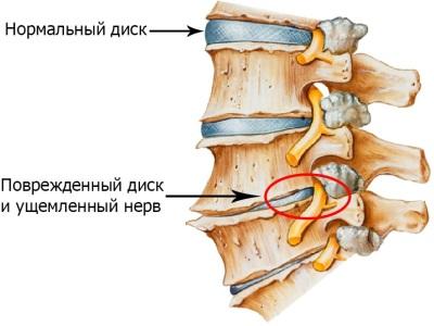 osteoxondroz.jpg