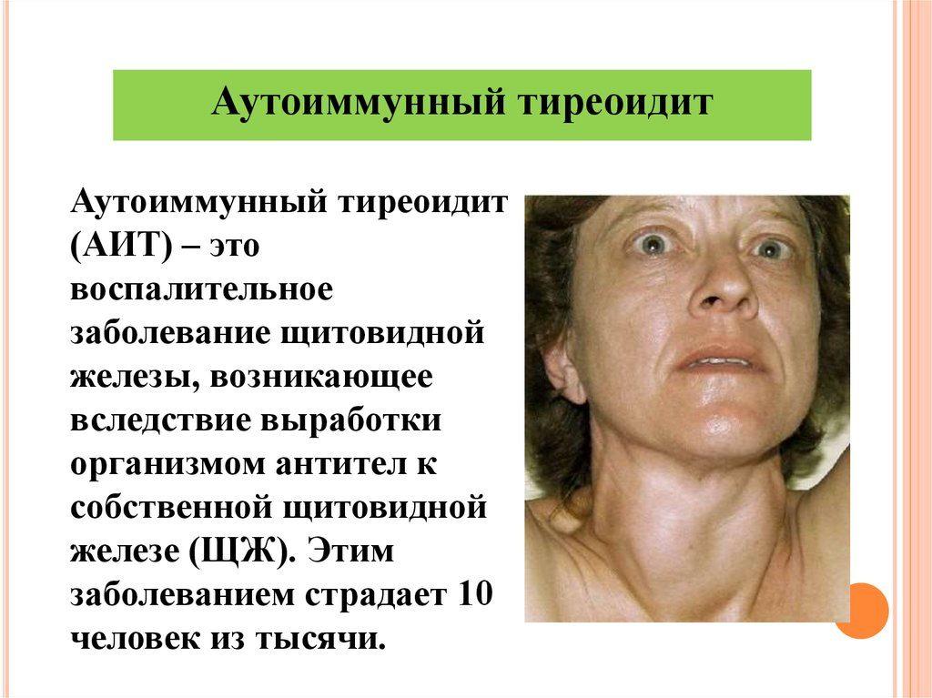аутоиммунный-тиреоидит-2-1024x767.jpg